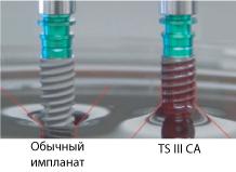 Новый Osstem имплантат с гидрофильными свойствами поверхности