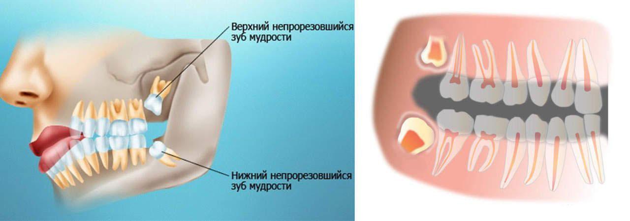 После удаления зуба мудрости болят другие зубы