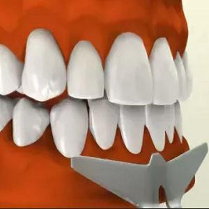 Вестибулопластика нижней челюсти. Виды операции: по Кларку, по Эдлану Мейхеру и по Казаньяну