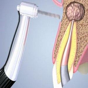 Лечение кисты зуба под коронкой в СПб