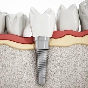 Аллергия на импланты зубов симптомы