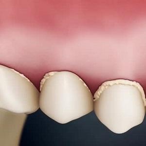 Белый налет на зубах - ПрофиМед