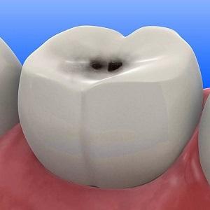 Коричневые пятна на зубах. Почему появляются чёрные точки на зубах и как их лечить