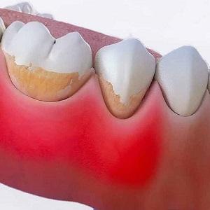 Чем почистить черный налет на зубах