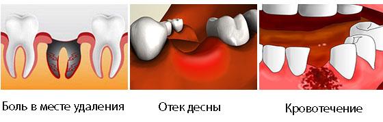 Боль при открывании рта и жевании дырка в щеке