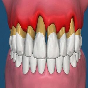 Оголились корни зубов что делать