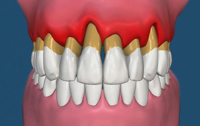 Что делать при оголении корней зубов