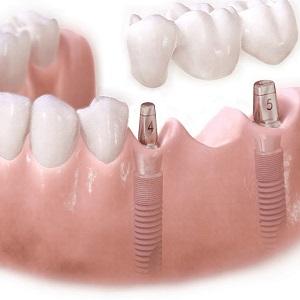 Имплант или мост — что лучше имплантант или мостовидный протез
