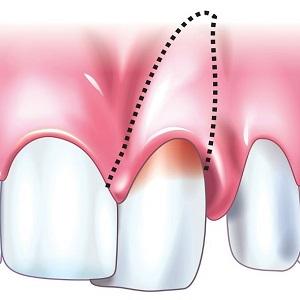 Как укрепить зуб который шатается