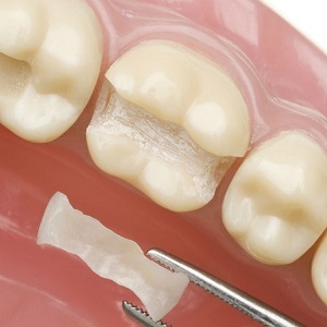 Керамическая вкладка на зуб – Плюсы и минусы вкладки вместо пломбы