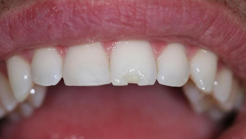 Крошатся зубы у женщин