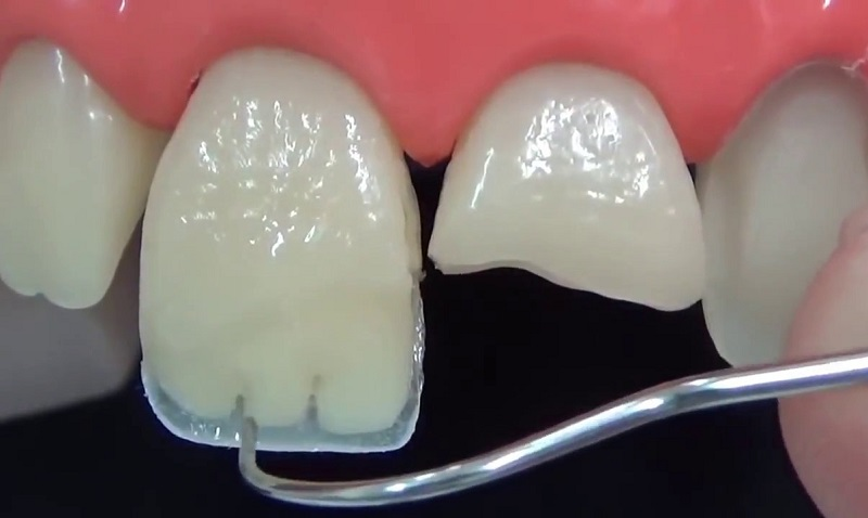 Материал для наращивания зубов