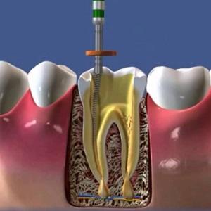 Пломбирование корней молочных зубов материалы