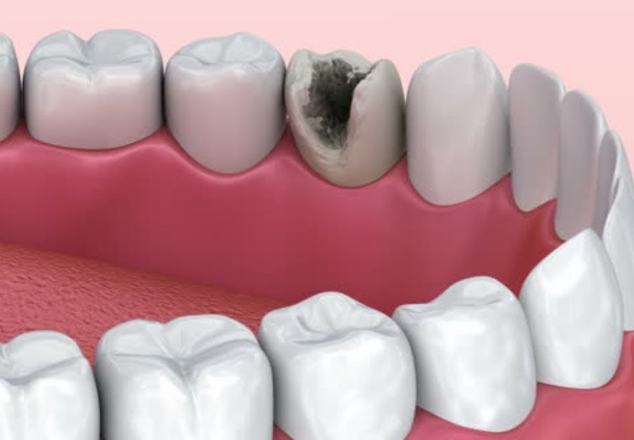 Почему разрушаются зубы у взрослых