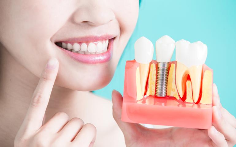 Подготовка к имплантации зубов
