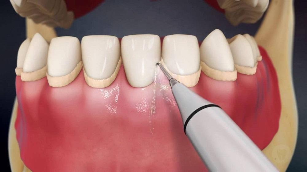 Удаление налета в стоматологии