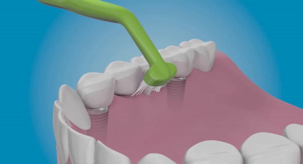 Уход за имплантами зубов после установки
