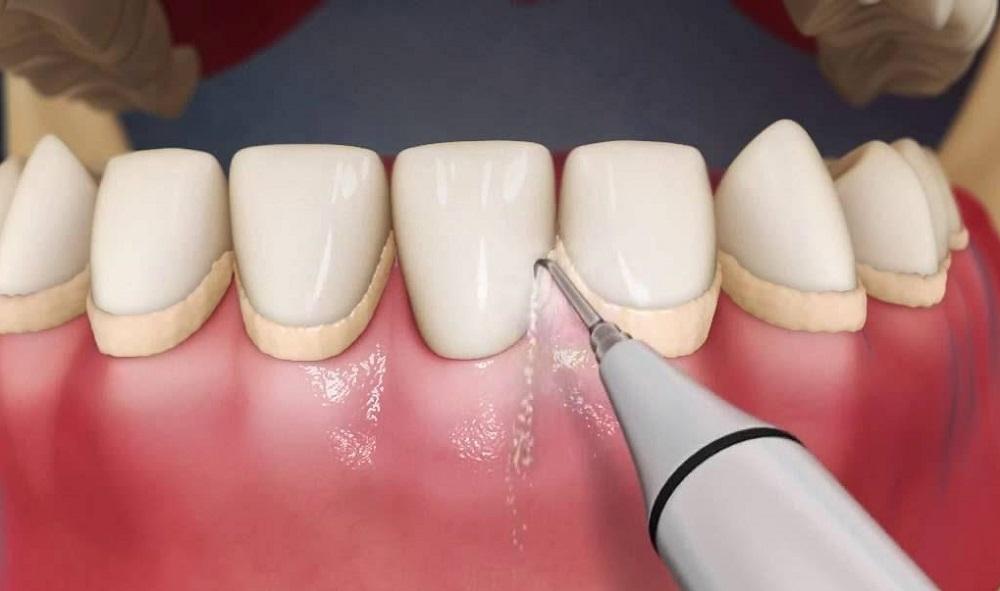 Чистка зубных отложений ультразвуком