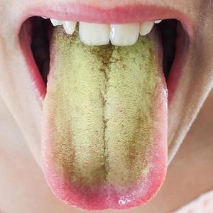 Зеленый налет на языке - причины и лечение