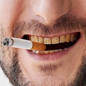 Налет курильщика