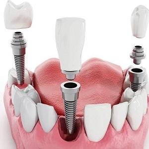 Больно ли вживлять импланты зубов