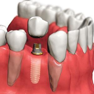 Этапы имплантации зубов - как происходит имплантация зубов?