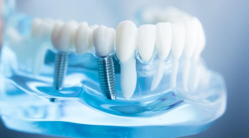 Протезирование зубов как это происходит