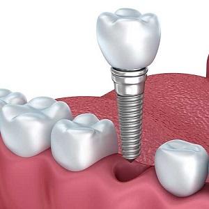 Имплантация зубов: противопоказания и возможные осложнения