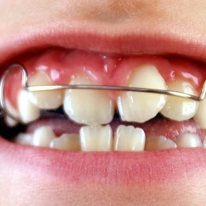 Кривые зубы у детей – Что делать, если зуб растет криво