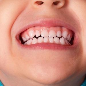 Почему ребенок 9 месяцев скрипит зубами. Причины детского скрежета зубами днем: провоцирующие факторы и лечение. Дневной скрежет зубами у ребёнка