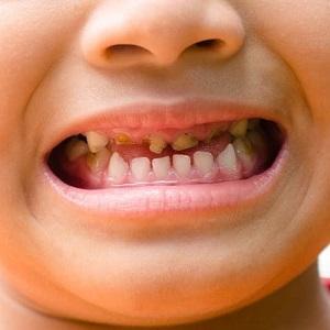 Почему гниют зубы у маленьких детей