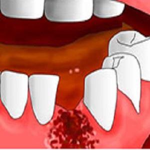 Выдрали зуб болит десна что делать