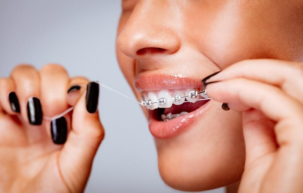 Правила чистки зубов с брекетами аксессуары и средства для ухода за системой