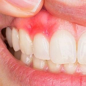 Как быстро снять опухлость при зубном флюсе