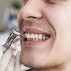 Отбеливание зубов с пломбами можно ли это сделать, как и где