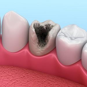 Что делать, если выпала временная пломба 🚩 выпала пломба болит зуб что делать 🚩 Лечение болезней