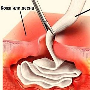Дренаж в десне после удаления зуба