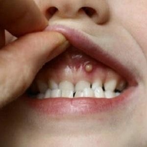 Гнойник на десне возле зуба: как лечить нарыв у детей и взрослых