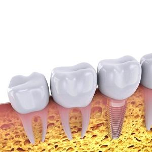 Вторые моляры это какие зубы