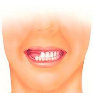 Вторичная адентия зубов